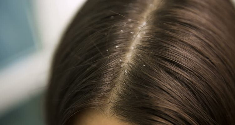 How to Treat Your Hair with Dandruff