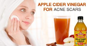 6 Steps to Include when Using Green Apple to Remove Scars