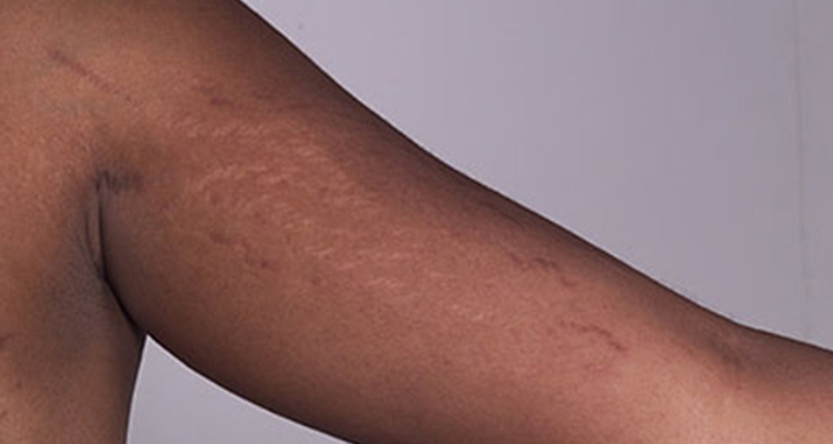 All About Stretch Marks