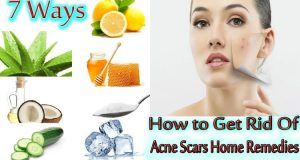 How To Get Rid Of Acne Scars At Home